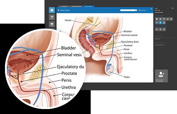Chirurgie-Urologique---Prostate